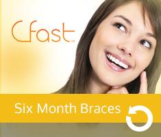 CFast Six Month Braces image